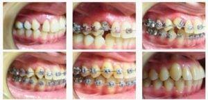 ortodont1