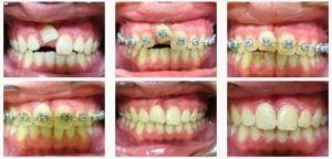 ortodont5