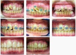 ortodont3