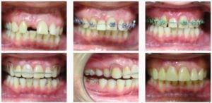 ortodont4