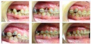 ortodont2