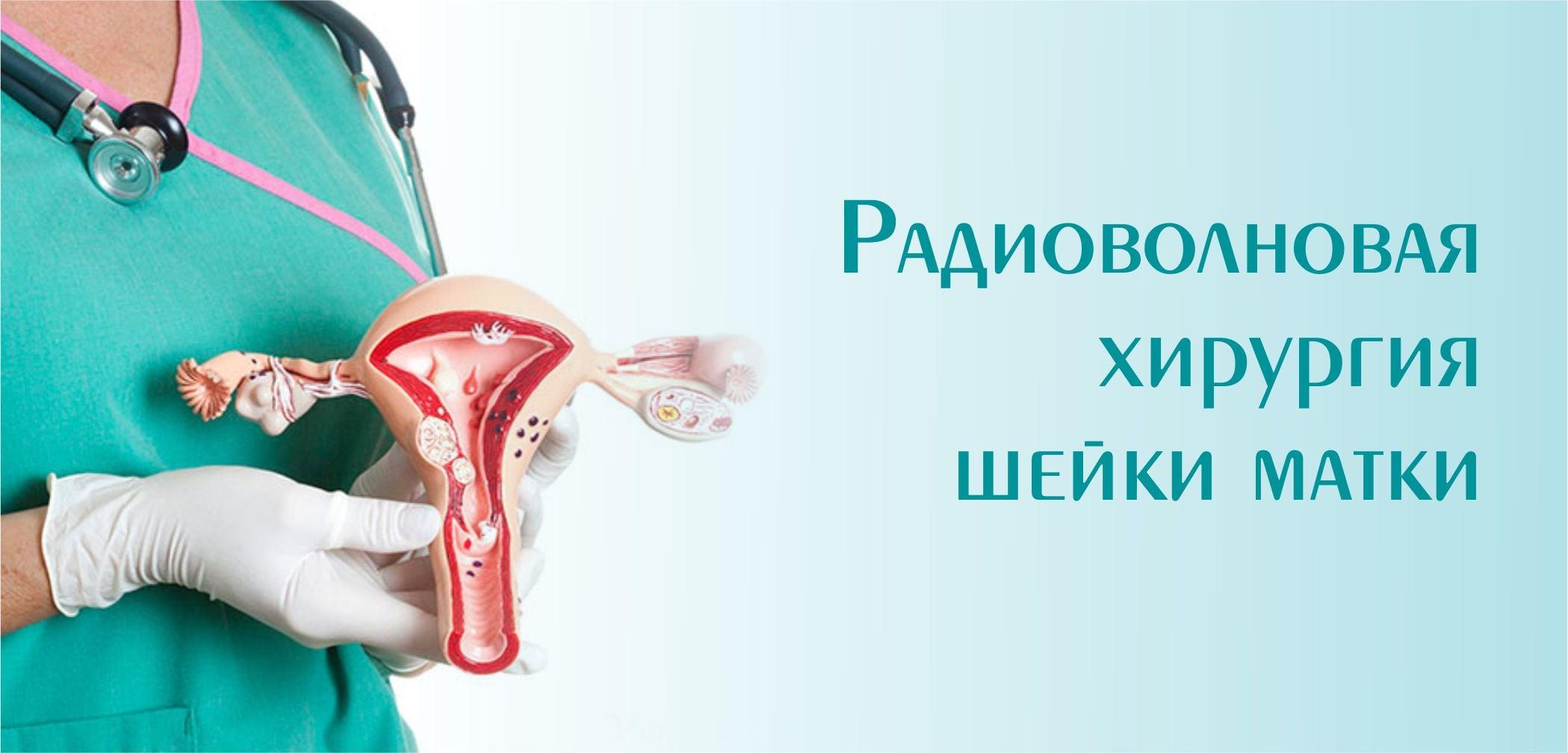 Радиоволновая хирургия шейки